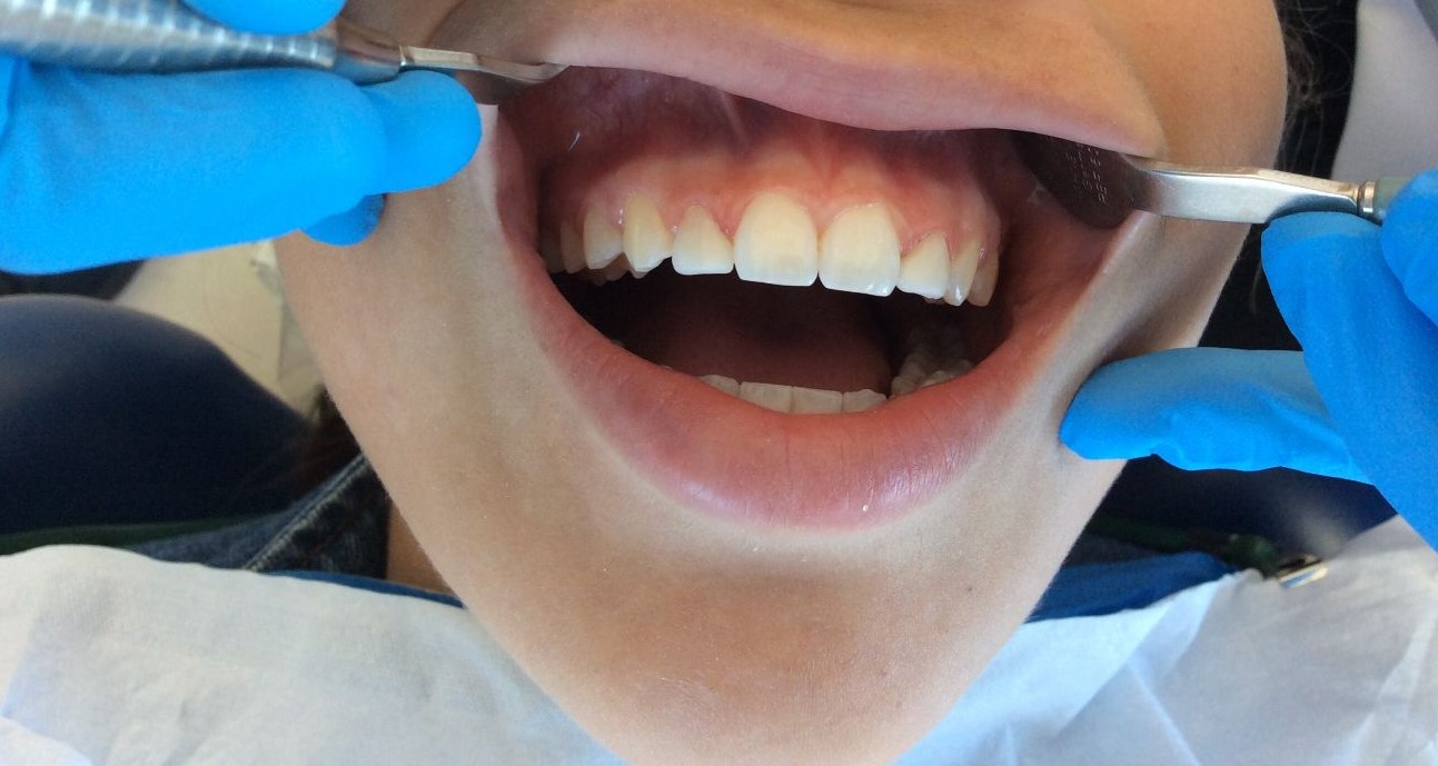 After Laser and composite to create normal size lateral incisors