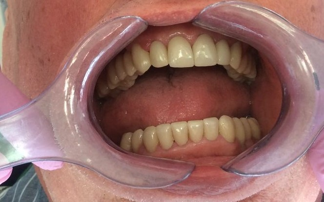Prosthodontic After